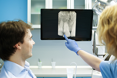 Are Digital X-rays Really That Important?